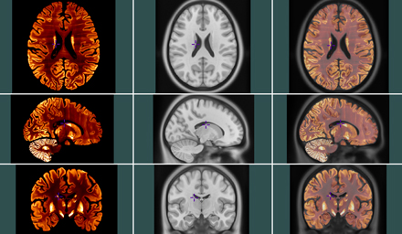 Transformation (column on right) of  BigBrain (at 100um resolution, first column on left) and MNI stereotaxic space (at 500um, middle column). / Photo courtesy of the Montreal Neurological Institute.