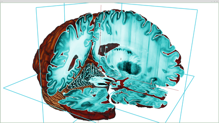 3-D view of the BigBrain with interior views showing the basal ganglia, hippocampus,cerebellum and cerebrum. / Photo courtesy Montreal Neurological Institute