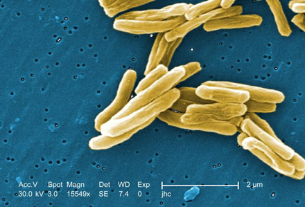 Mycobacterium tuberculosis, the bacterium that causes TB. / Photo courtesy of Dick Menzies.