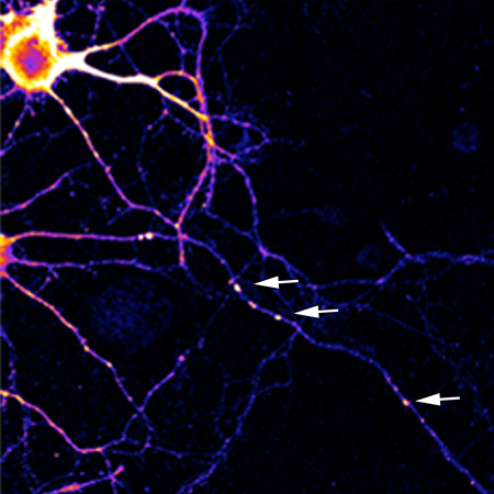 The picture shows a neuron where the specialized factories ready to produce proteins quickly  have been specifically labeled. / Photo: Dr. Wayne Sossin.