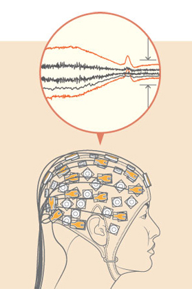 A programming technique developed by PhD student Hoda Daou allows for the simultaneous compression of EEG signals and monitoring of their regularity. / Illustration: Clint Ford