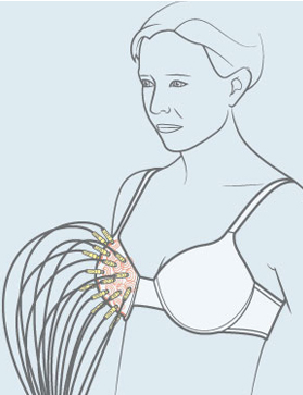The tomo-bra produces a scan of the breast tissue, enabling clinicians to spot changes in tissue density that could indicate a tumour. / Illustration: Clint Ford