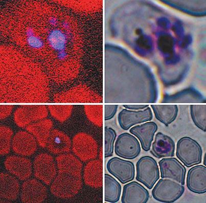 L'effet optique connu sous le nom de troisième génération harmonique colore en bleu les sécrétions du parasite du paludisme dans les cellules infectées (à gauche), ce qui pourrait accélérer et améliorer le diagnostic de cette maladie par rapport à l'imagerie microscopique traditionnelle (à droite).