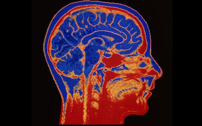 brain_2082678b