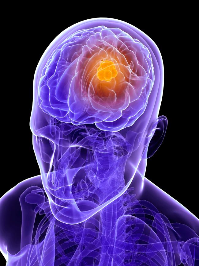 Brain-tumour.web
